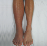 photograph20of20patient20with20dvt20symptoms20salem20skin20and20vein20specialists20winston20salem20nc