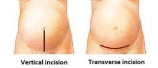 types-of-c-section-incision