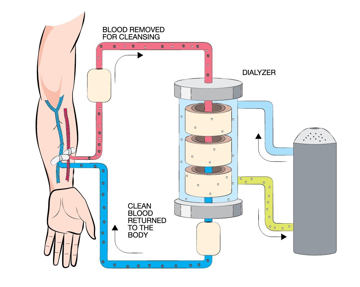 dialysis of drugs 2017 pdf