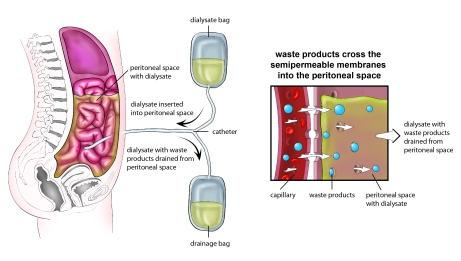 peritoneal_dialysis