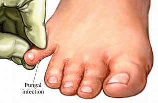 fungal-infection